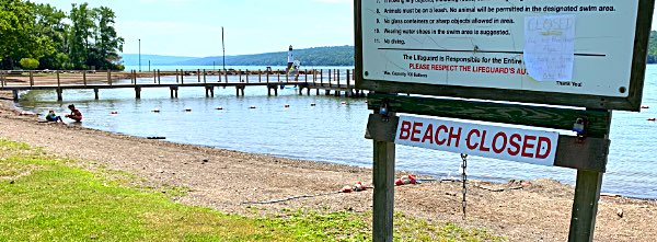 Myers Park Beach Closed